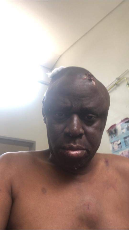 Jomo Osman Re-Arrested Over Billy Mayaya Assault